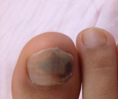 灰指甲有哪些症状