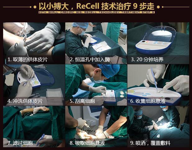 ReCell自体活性皮肤细胞移植再生技术