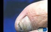 患了灰指甲有什么症状 脚气灰指甲怎么治