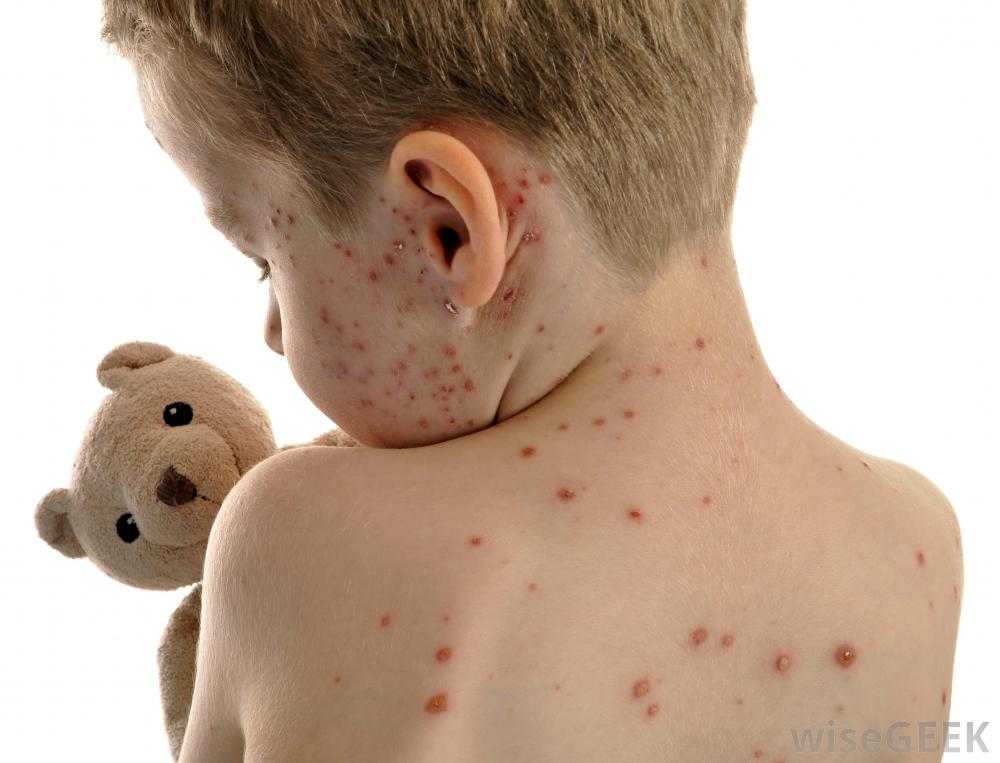预防水痘的方法的介绍