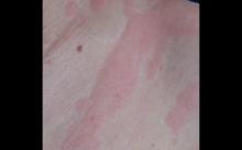 治疗荨麻疹要多久